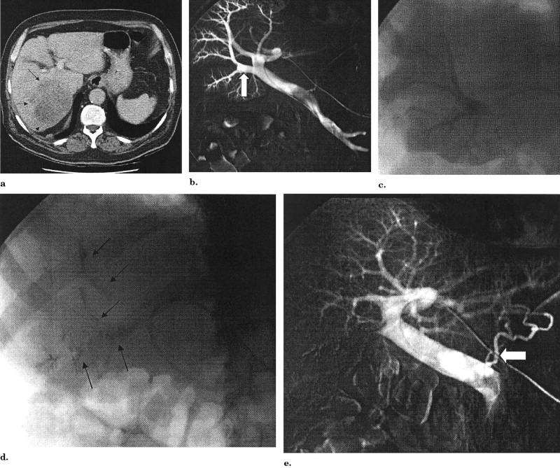 portal vein embolization discharge instructions